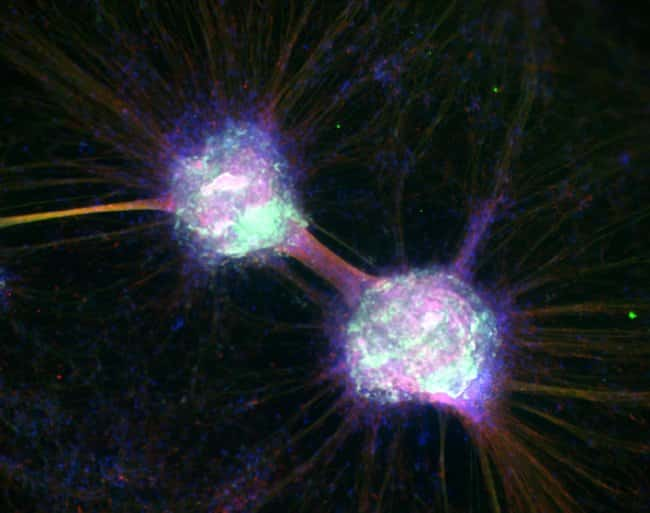 Differentiated H9 NSC-derived neurons mounted with Prolong Glass and imaged with EVOS FL Auto 2